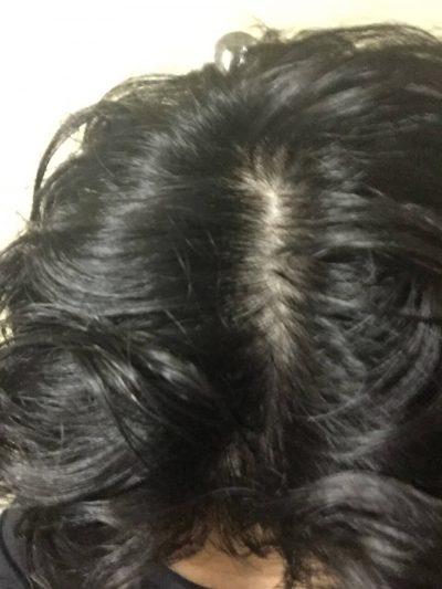 シャンプー語の頭皮